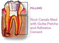 root canal completed