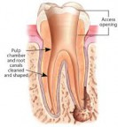 Root Canal: tooth cleaned and shaped